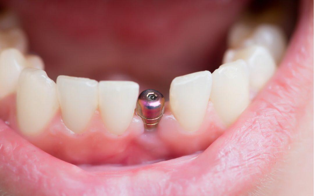 A tooth implant picture might look scary