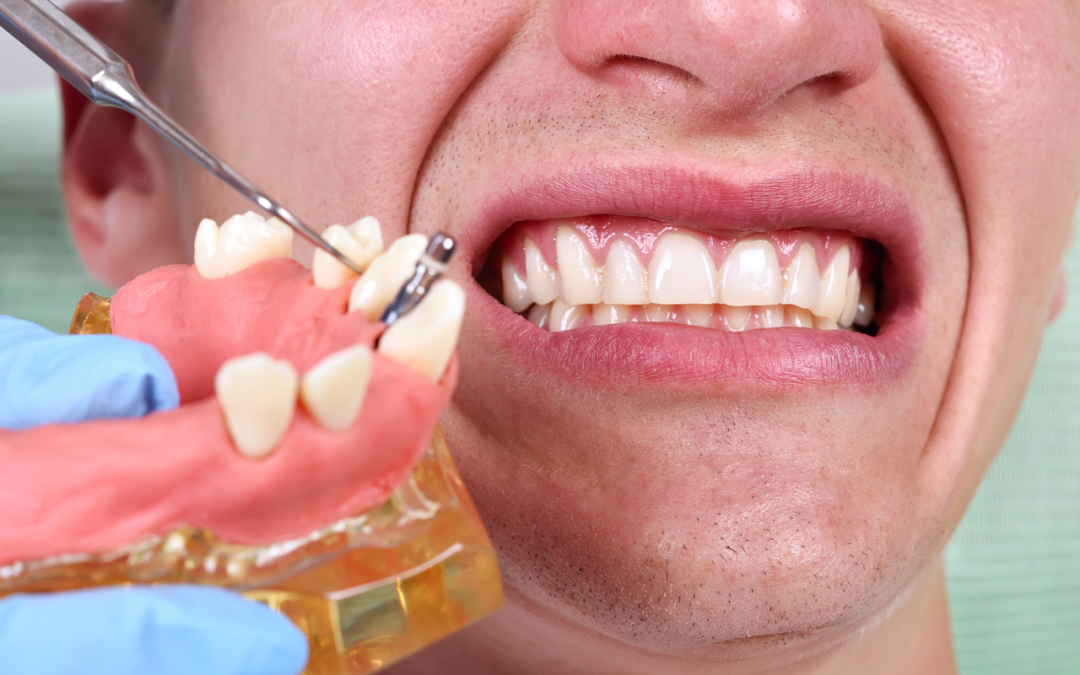 Adverse Effects Of Comprehensive Orthodontic Treatment