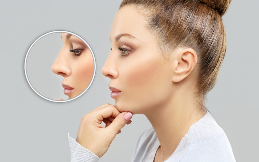 Rhinoplasty Recovery Tips