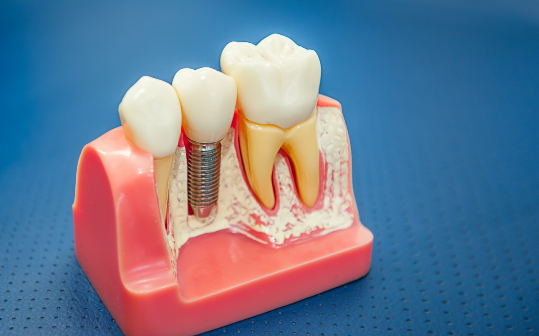 How To Enhance Your Recovery Time After Periodontal Surgery