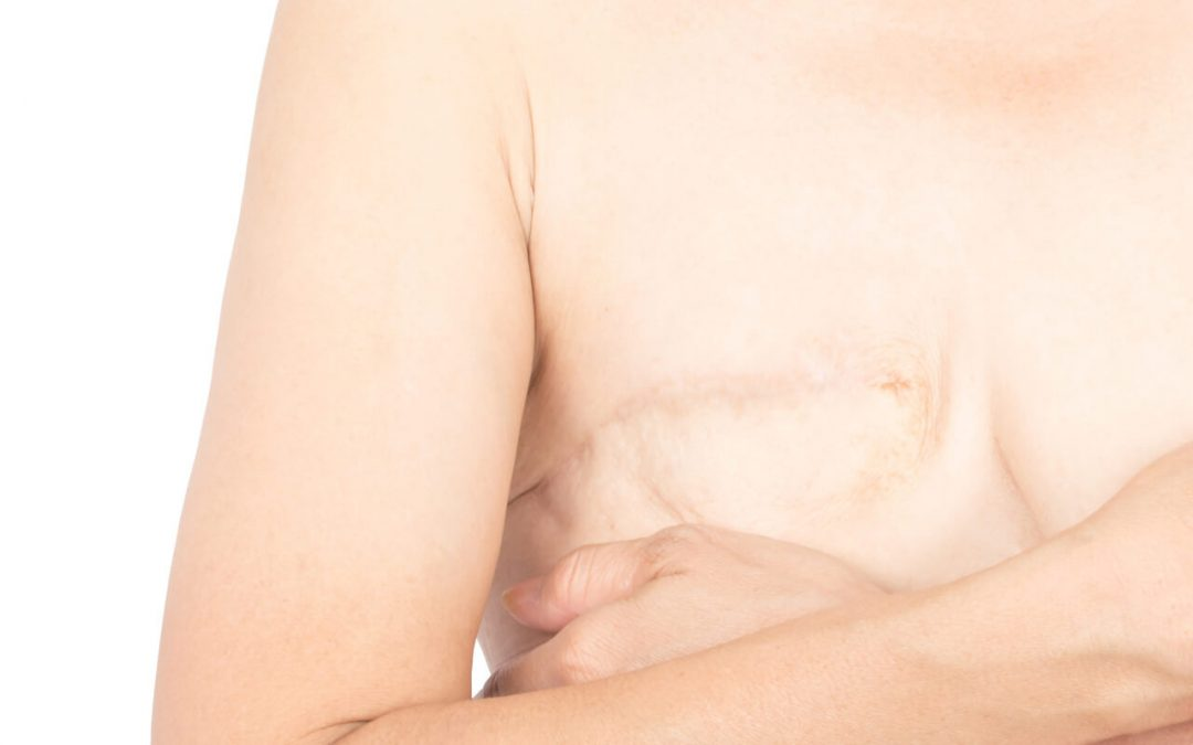 Mastectomy Scars Treatment