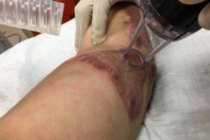 skin graft surgery