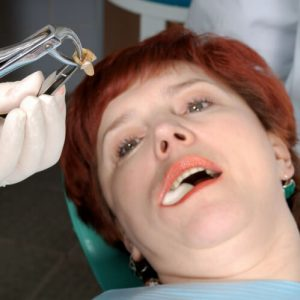 tooth extraction healing process