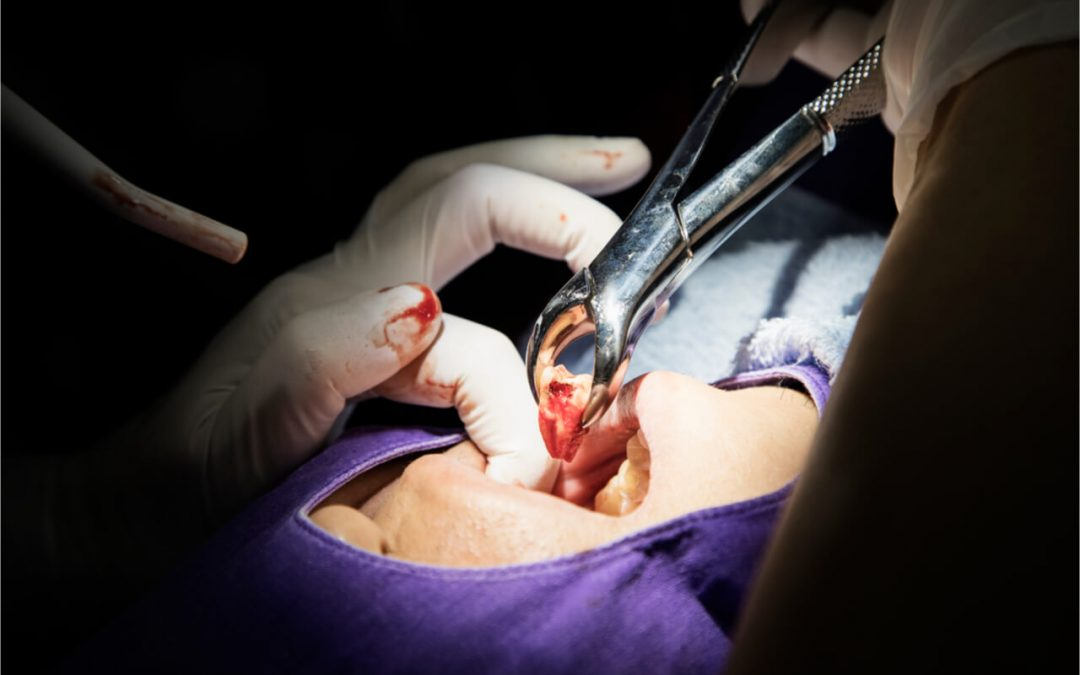 Read about tooth extraction healing process