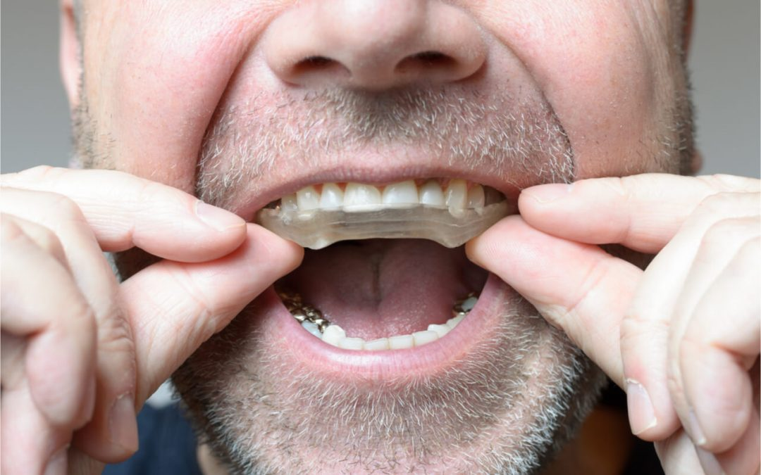 Best Mouth Guard for Bruxism