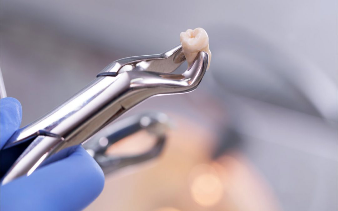 Molar Extraction Healing Process