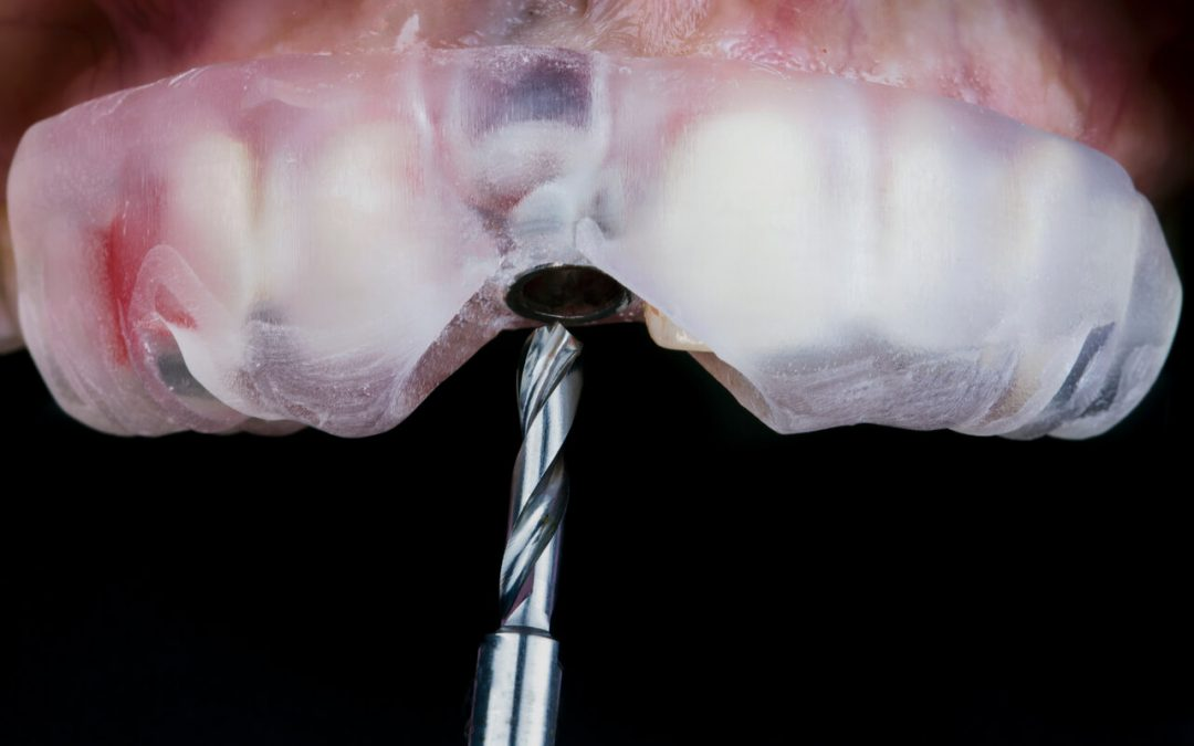 How long does a tooth implant recovery take?
