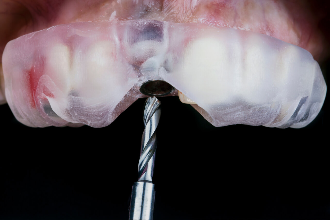 dental implant recovery time