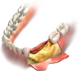 teeth bone grafting healing time