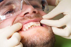 dental oral surgery