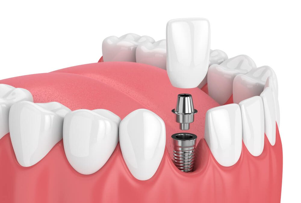 Dangers on Dental Implants Healing Abutments Reuse