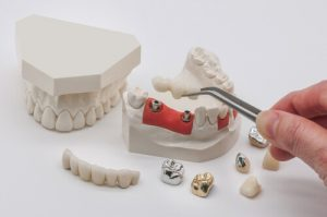 Precautions on Dental Implants Healing Abutments Usage