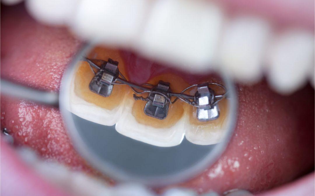 Lingual Braces Cost & Effectiveness