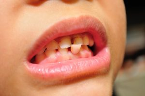 how long does a loose tooth take to heal