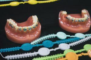 Orthodontic Separators Natural Damages