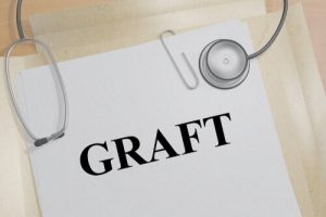 dental bone graft recovery