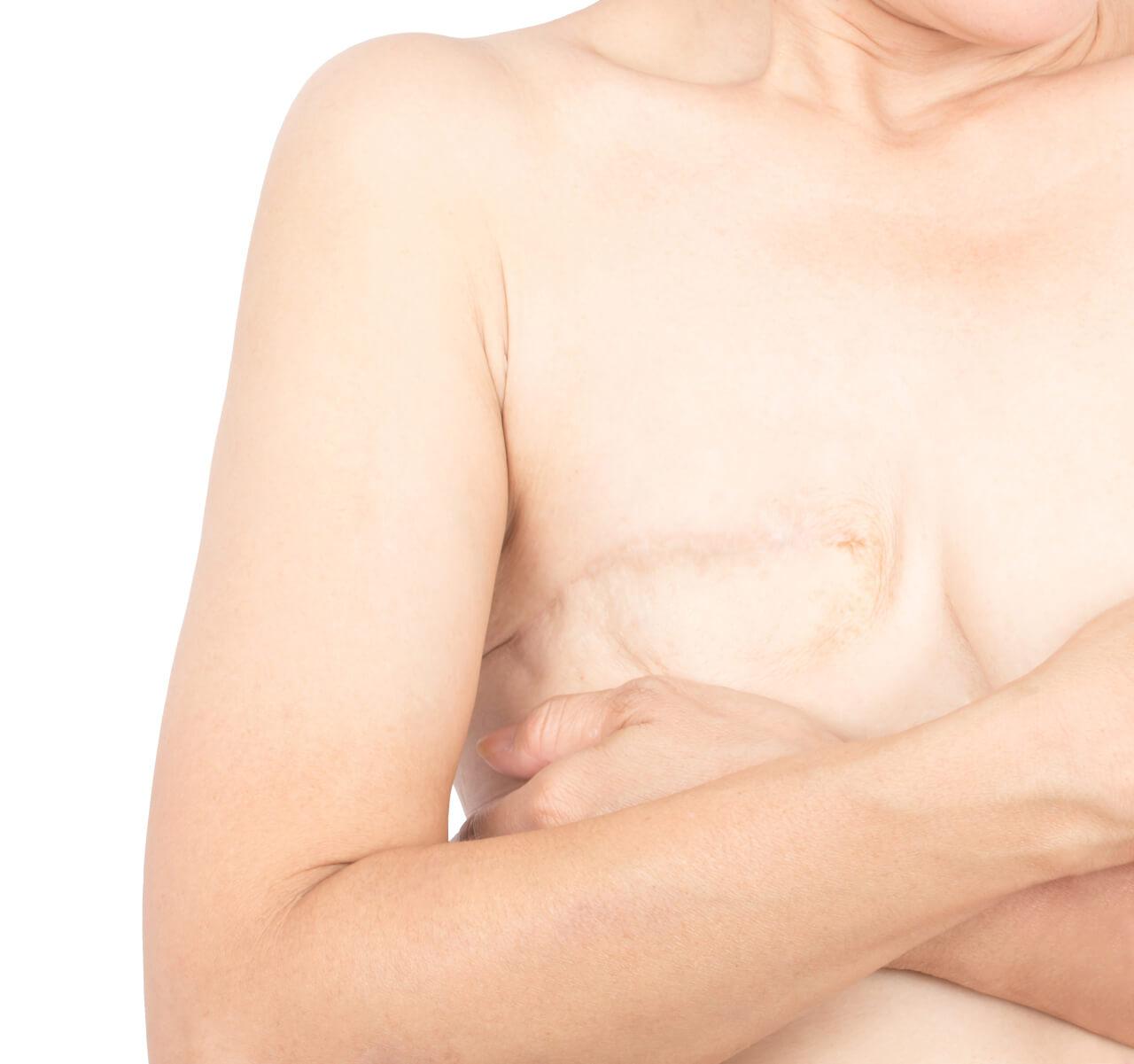 mastectomy scars