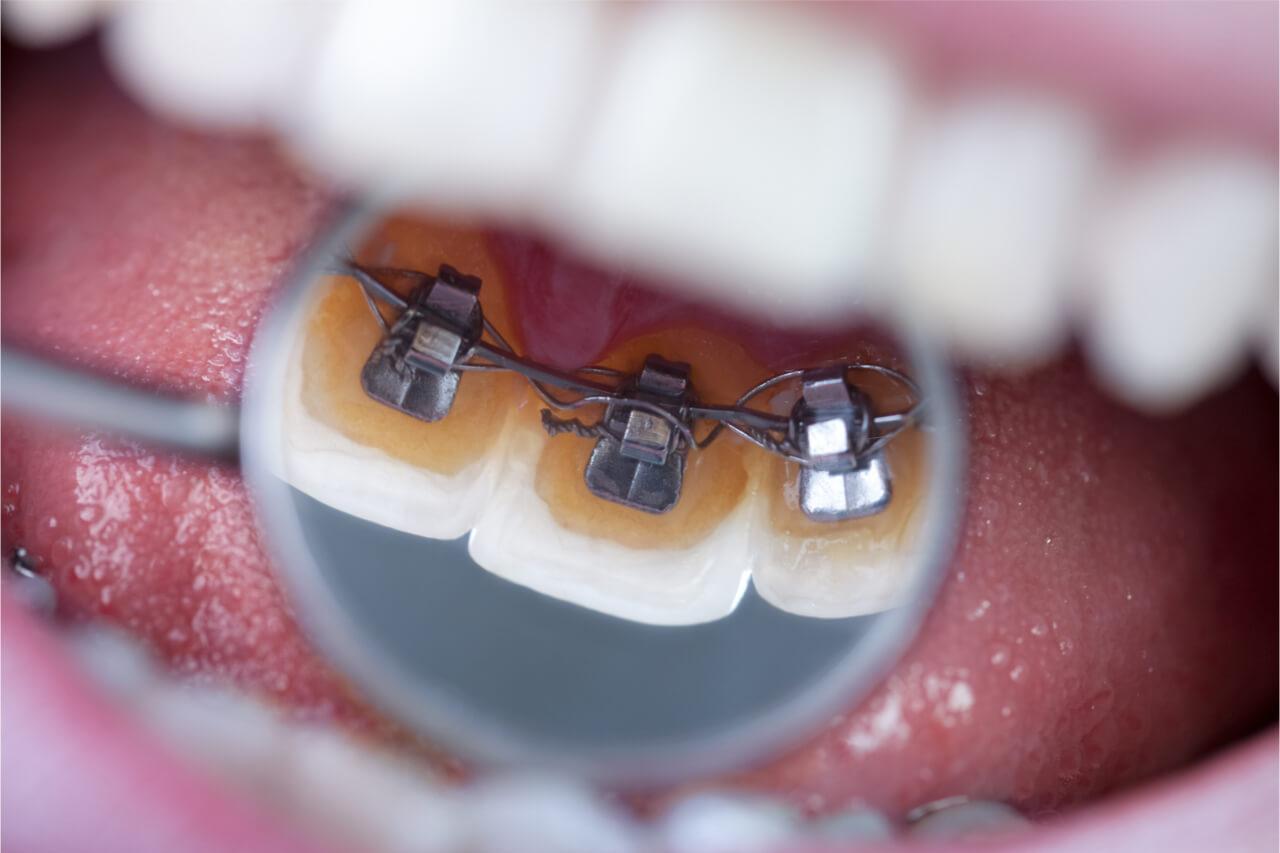 lingual braces cost