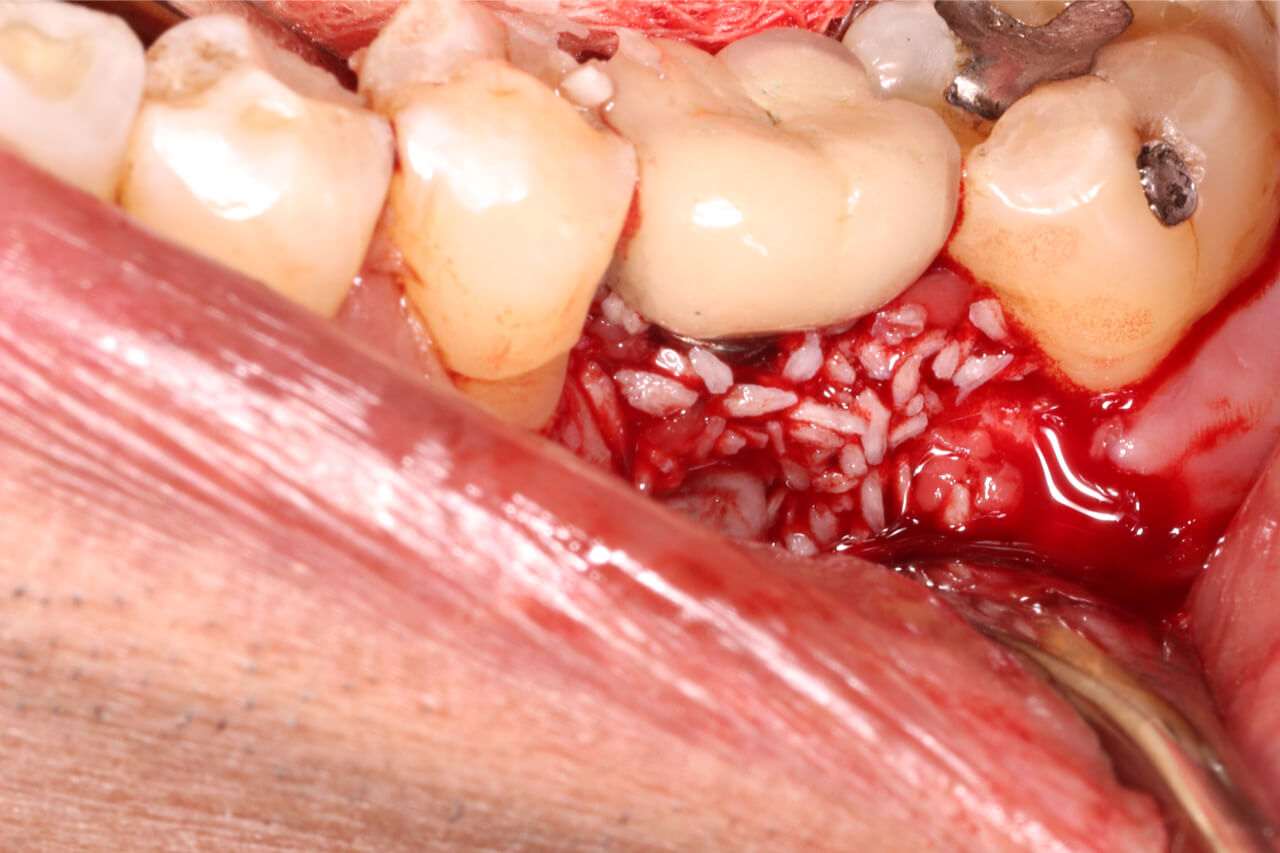 dental bone graft healing timeline
