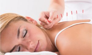 The woman gets acupuncture for pain relief.